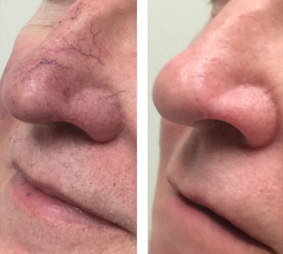 Cutera Excel V Laser Mountain View Scarring Red Spots