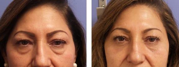 Eyelid Rejuvenation Mountain View - Laser Cosmetic Surgery