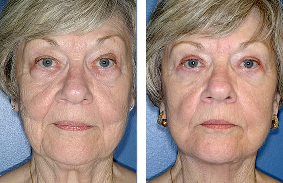 Click to View More Before & After Cases