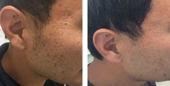 Laser Tattoo Removal Mountain View CA | Skin Pigmentation