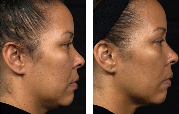 Thermage Treatment Mountain View CA - Skin Smoothening