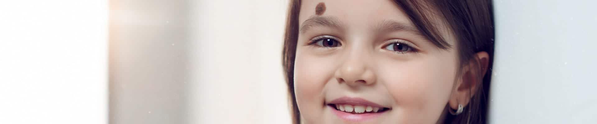 Birthmark Removal Mountain View - Hemangiomas Treatment