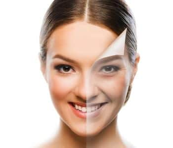 Chemical Peels | The Menkes Clinic