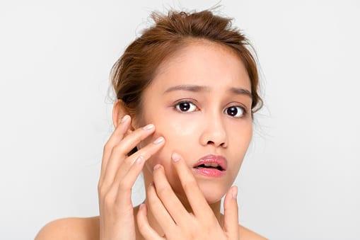 acne pediatric dermatology