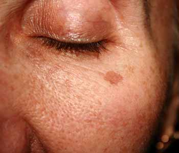 brown spots treatment mountain view