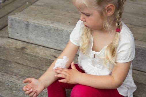 czema pediatric dermatology