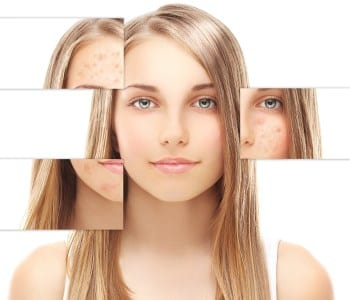 laser scar removal mountain view ca
