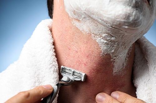 shaving folliculitis