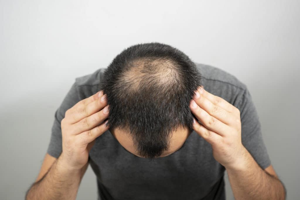 Alopecea