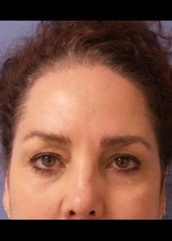 Eyelid Rejuvenation Case 1