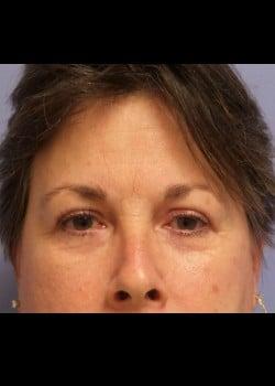 Eyelid Rejuvenation Case 2