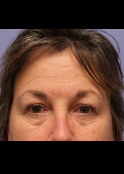 Eyelid Rejuvenation Case 2