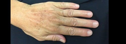 Restylane Filler for Hands