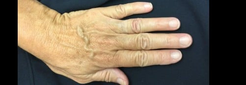 Restylane Filler for Hands