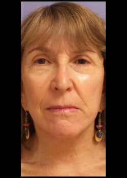 Facelift / Neck Lift Case 3