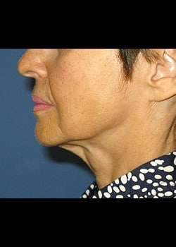 Facelift / Neck Lift Case 4