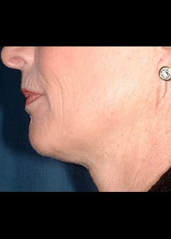 Facelift / Neck Lift Case 6