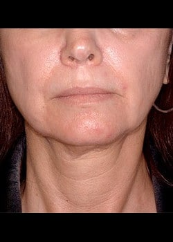 Facelift / Neck Lift Case 7