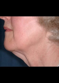 Facelift / Neck Lift Case 10