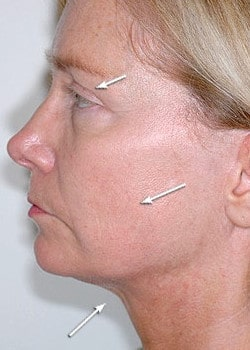 Facelift / Neck Lift Case 12