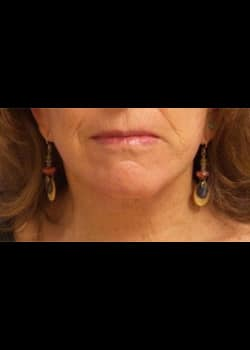 Facelift / Neck Lift Case 14