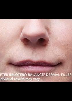 BELOTERO® Case 1