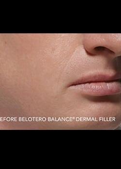 BELOTERO® Case 3