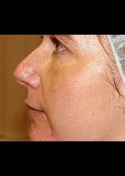 Chemical Peel Case 3