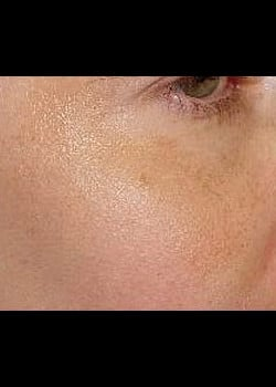 Chemical Peel Case 4