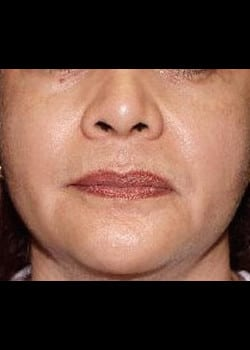 Chemical Peel Case 6