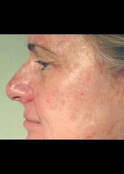 Chemical Peel Case 8
