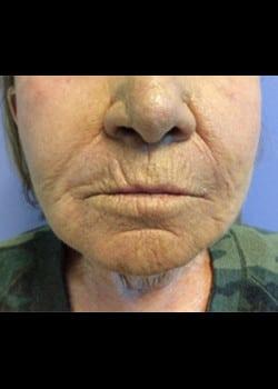 Wrinkle Fillers Case 2