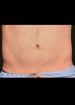 CoolSculpting Case 3