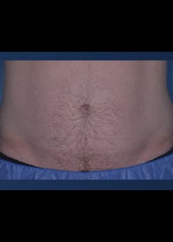 CoolSculpting Case 5