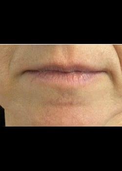 Wrinkle Fillers Case 6