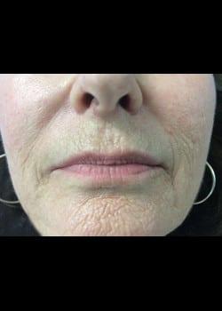 Wrinkle Fillers Case 10