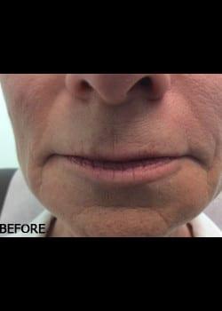 Wrinkle Fillers Case 11