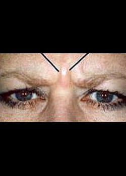 Wrinkle Fillers Case 17