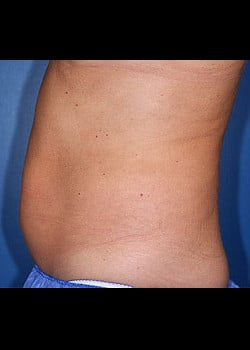 CoolSculpting Case 10