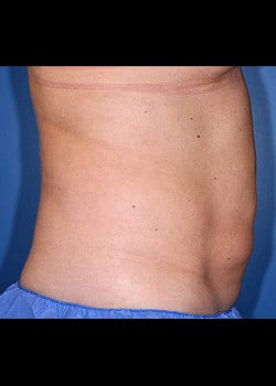CoolSculpting Case 11