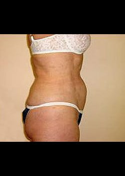 Liposuction Case 11