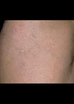 Laser Hair Removal Case 5