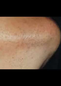 Laser Hair Removal Case 6