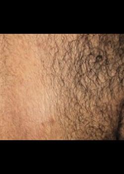 Laser Hair Removal Case 7