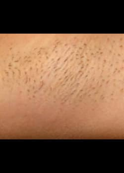 Laser Hair Removal Case 11
