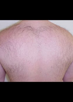 Laser Hair Removal Case 12