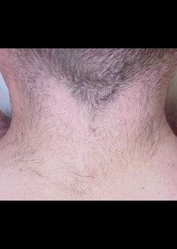 Laser Hair Removal Case 13