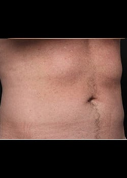 CoolSculpting Case 14