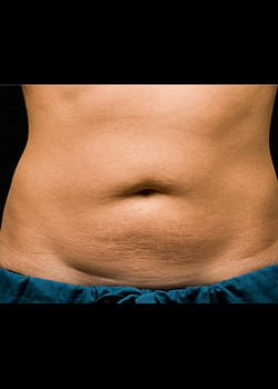CoolSculpting Case 15