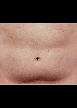 CoolSculpting Case 20